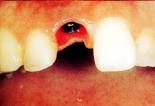 前歯を1本失った場合