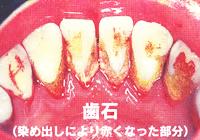 歯石(染め出しにより赤くなった部分)