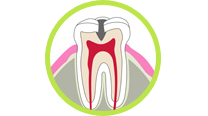 むし歯の進行
