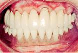 総入れ歯が安定しない場合